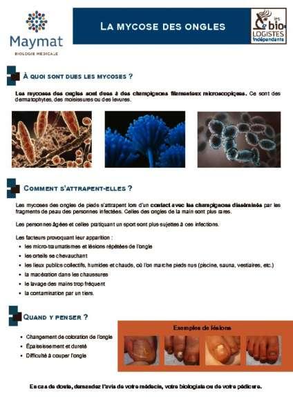 thumbnail of MAYMAT_FP_mycose_A4_R4PCO-DX-117-V01 février 2020